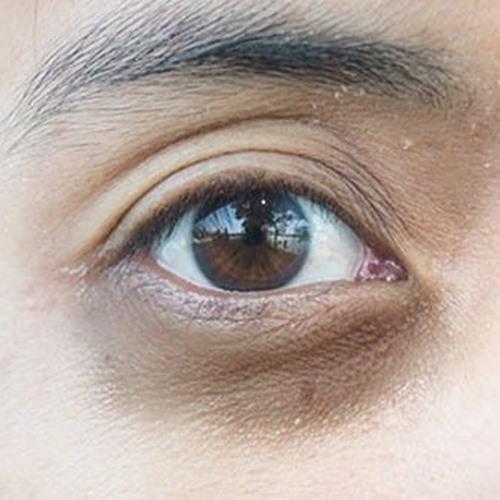 ผิวมีถุงใต้ตา