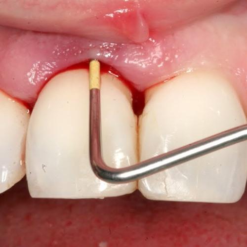 วิตามินซีเลือดออกตามไรฟัน